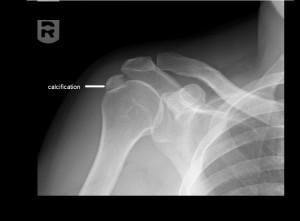 calcification-shoulder.Ser1002.Img10022